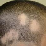 Alopecija areata opadanje kose u krugovima