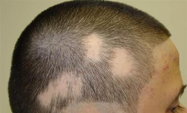 alopecija opadanje kose u krugovima