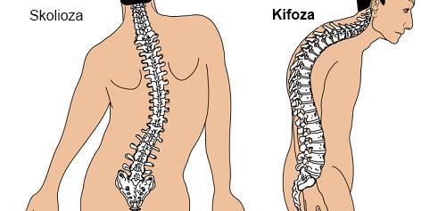 Kifoza kičme – lečenje i vežbe