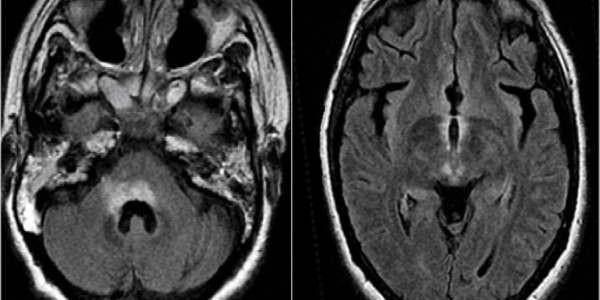 Lezije na mozgu uzrok, simptomi, lečenje