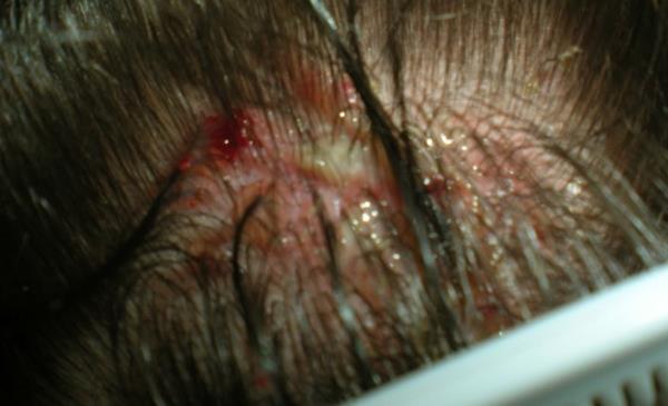 kraste i rane na glavi