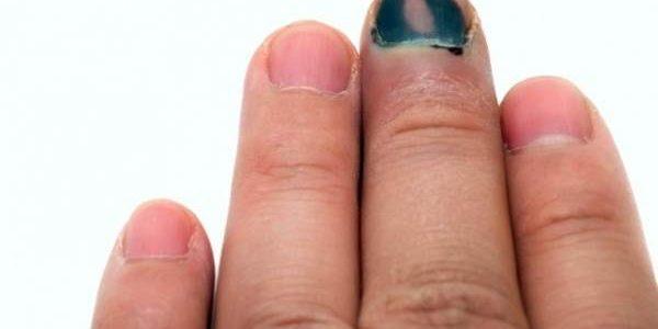 20 smrtnosnih simptoma raka koje žene najčešće zanemaruju