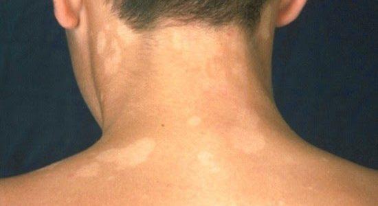 Gljivice na koži, simptomi, vrste, lečenje, mere samopomoći
