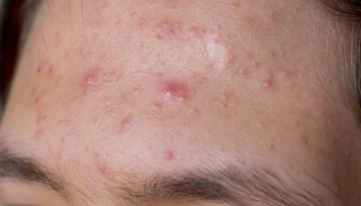 8 načina da se oslobodite akni na čelu