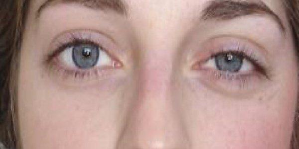 Hornerov sindrom simptomi, dijagnoza, uzroci