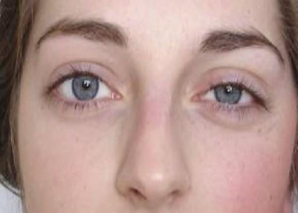hornerov sindrom simptomi i lecenje