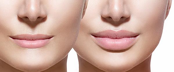hijaluronska kiselina za usne