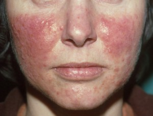 rozacea simptomi slike