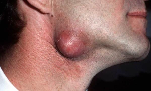 lojna cista na licu - vratu