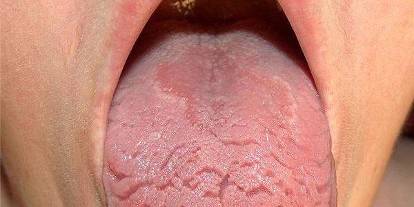 Ispucan jezik i pukotine na jeziku – uzroci i lečenje