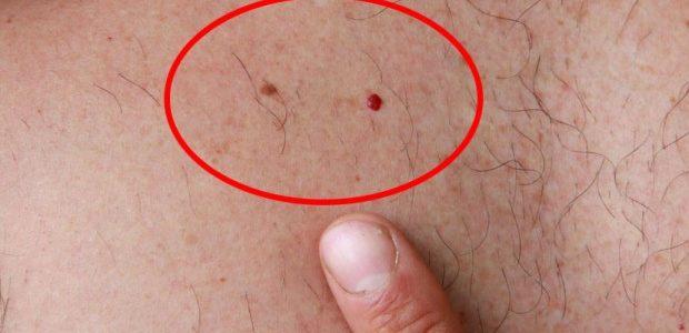 Ako vam se pojavi ovakva CRVENA TAČKICA na koži, ne ignorišite je jer može da bude OPASNA