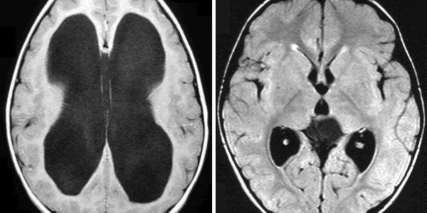 Hidrocefalus voda u glavi – simptomi, lečenje, komplikacije