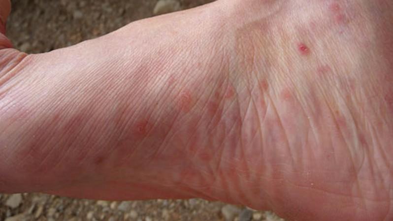 crvene fleke po nogama koje svrbe