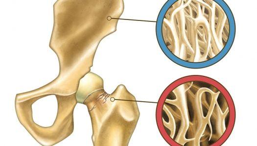 Osteopenija simptomi, terapija, ishrana, prirodno lečenje
