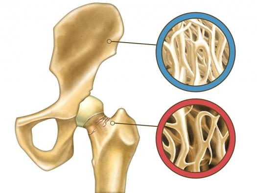 osteopenija prirodni lek