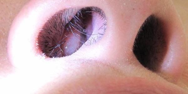 Polipi u nosu simptomi, lečenje, operacija, prirodni lekovi