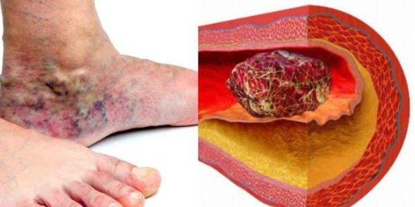 Tromboza dubokih vena simptomi, lečenje, prevencija